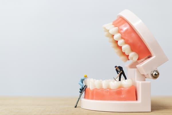 השתלות שיניים ברחובות - מעין שורש מלאכותי של השן